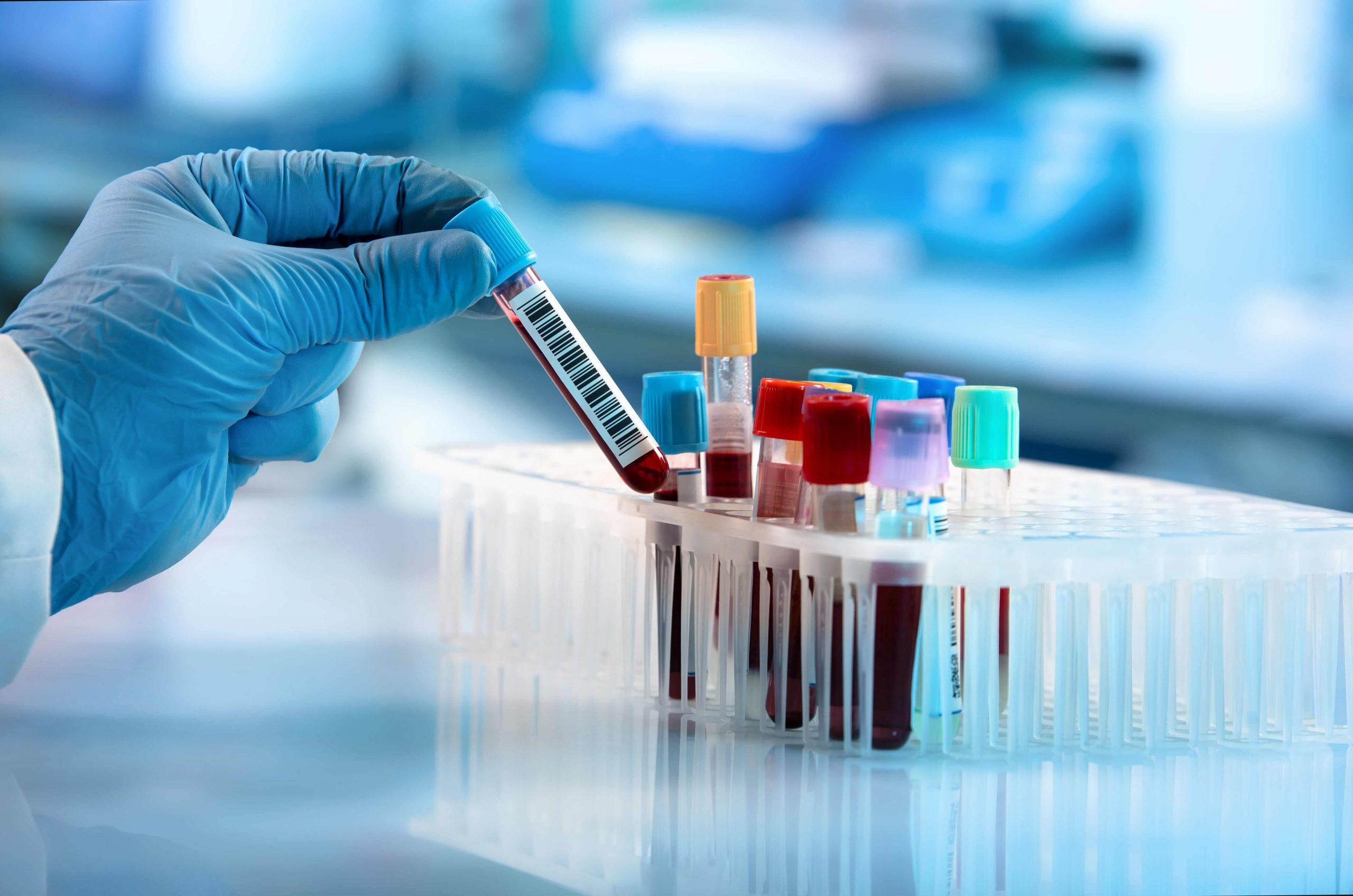 Choroby wątroby - badania krwi